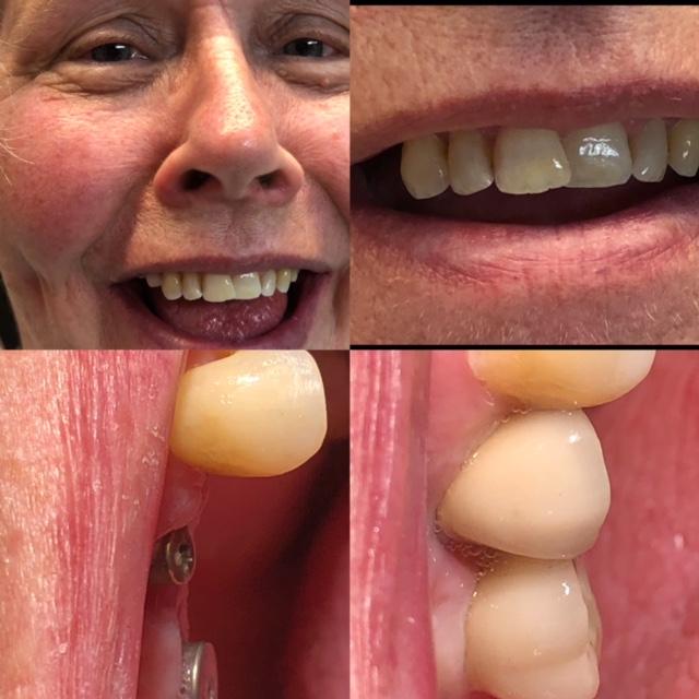 hammasimplantit ennen ja jälkeen