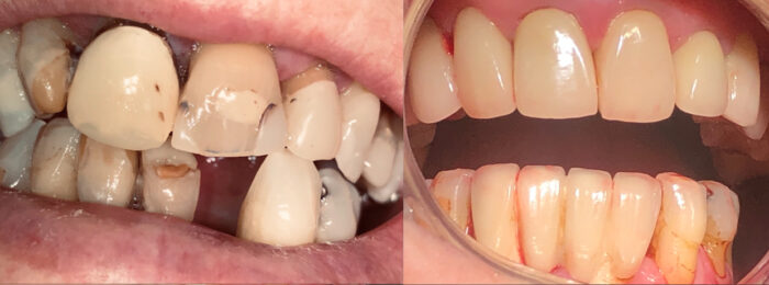 esteettinen hammashoito ennen ja jälkeen