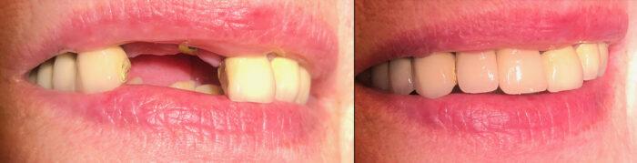 kahden hampaan hammasimplantti