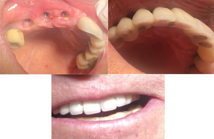 kolmen hampaan hammasimplantti