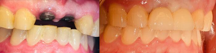 hammasimplantit etuhampaat ennen ja jälkeen