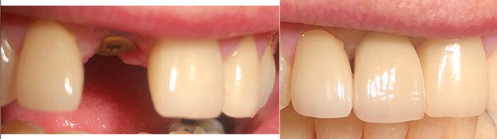 yhden hampaan hammasimplantti