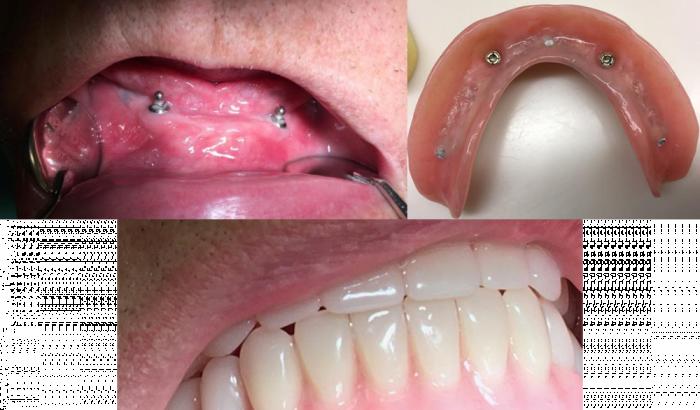 alaleuan hammasimplantit