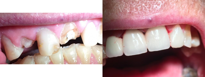 esteettinen hammashoito, hampaiden korjaus