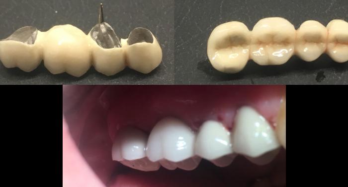hammassilta kuva