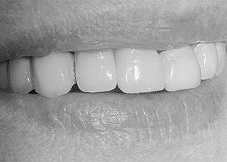 hammasimplantti lopputilanne