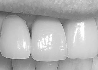 kuva hammasimplantin jälkeen