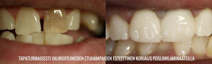 esteettinen hammashoito tapaturman jälkeen