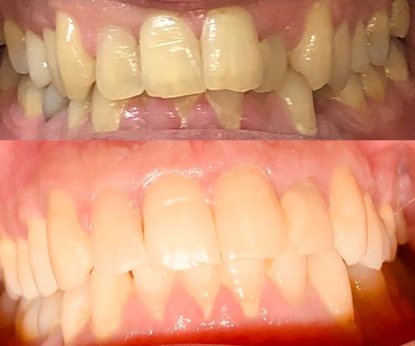 invisalign kalvo-oikominen ennen ja jälkeen kuva 1