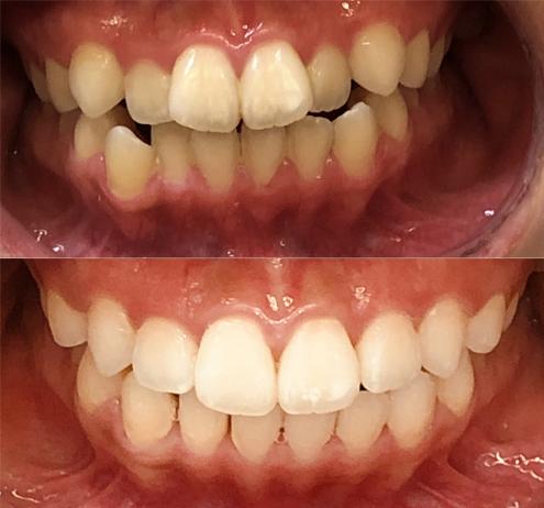 invisalign kalvo-oikominen ennen ja jälkeen kuva 3