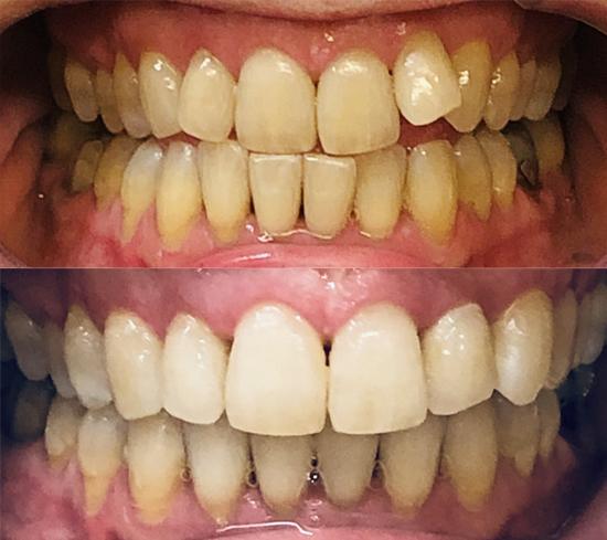 invisalign kalvo-oikominen ennen ja jälkeen kuva 4