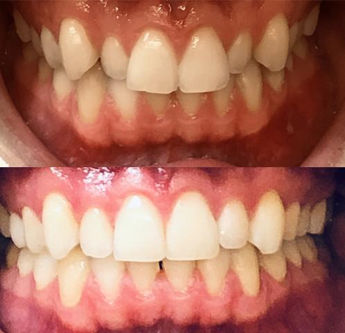 invisalign kalvo-oikominen ennen ja jälkeen kuva 5